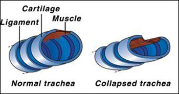 normal trachea vs. a collapsed trachea