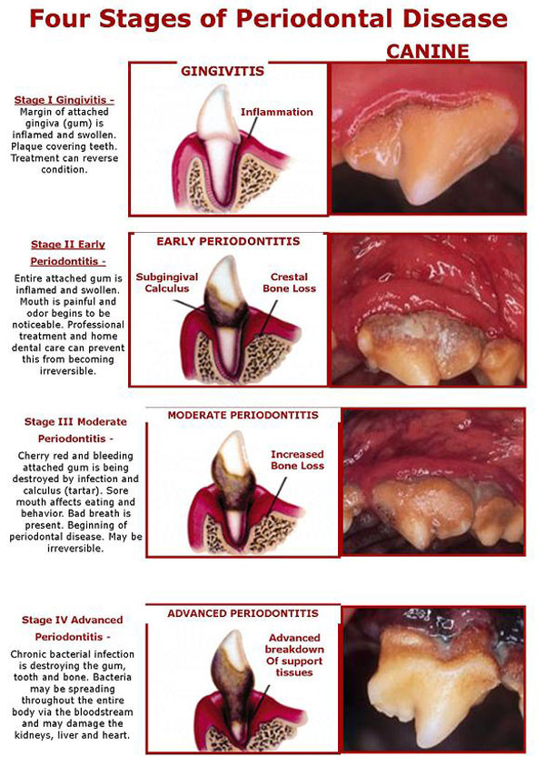 the four stages of periodontal disease